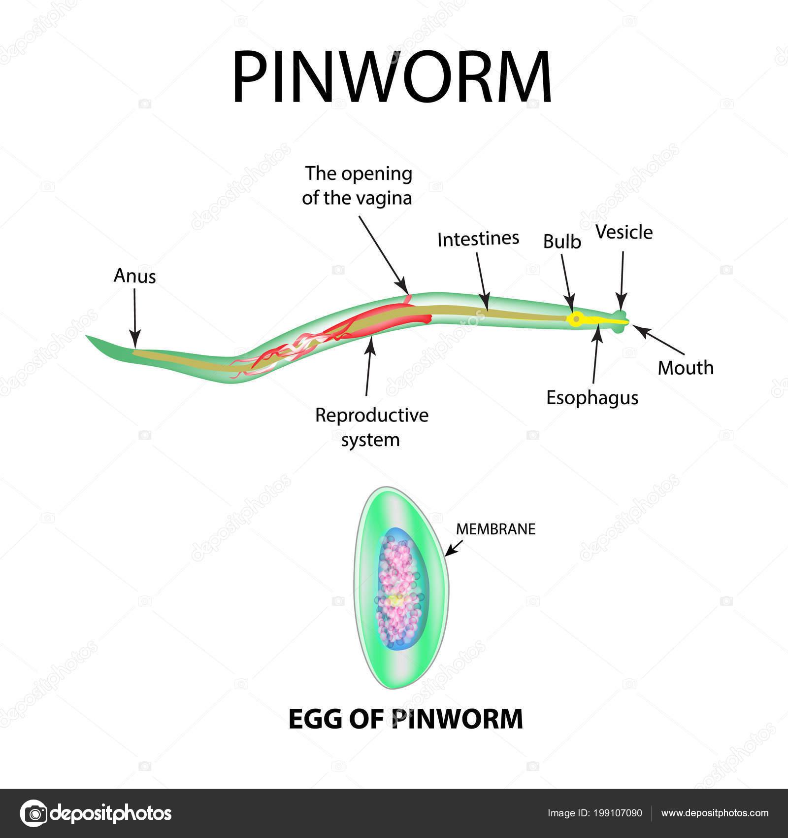 Felnőtt, pinworm. Viszonoz, szakasz, kereszt, ábra, pinworms, kettőspont, emberi, 3.