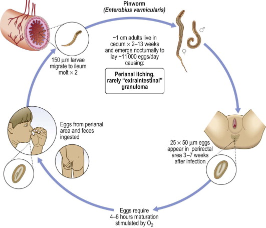 A gyermekekben található a pinworm bejegyzés a kerek féreg témájáról