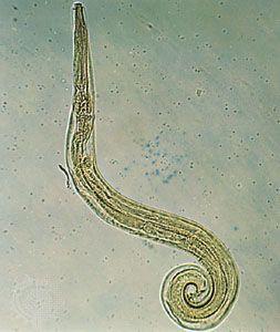 kihúzta a pinworm et