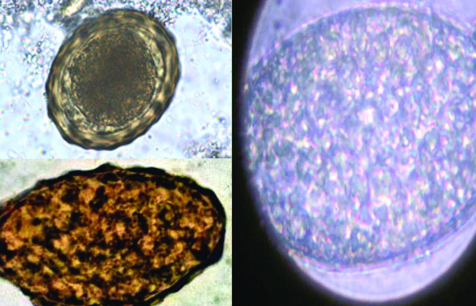 hogyan terjednek a helmint betegségek az emberekre