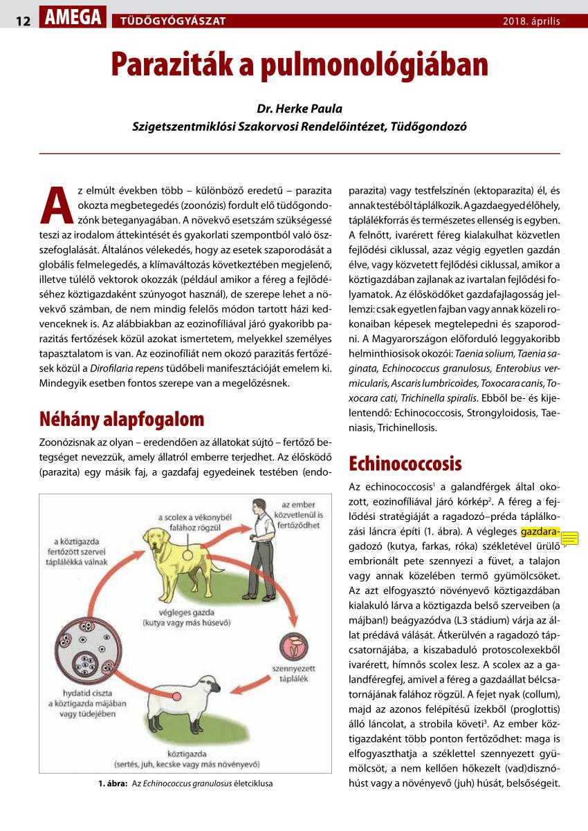 Ismételt aszcariasis - Általános információk
