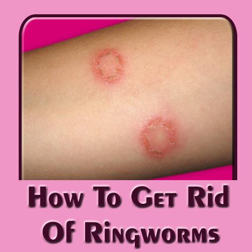 A gyermekekben található a pinworm