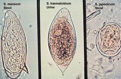 schistosoma haematobium paraziták gyógyszerek a víz visszatartásához a testben
