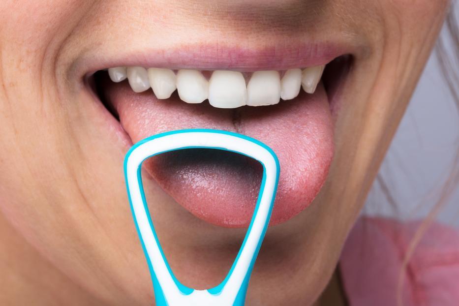 miért rossz a lehelet és a fehér nyelv