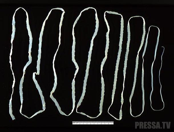 bika szalagféreg mászik ki egy személy