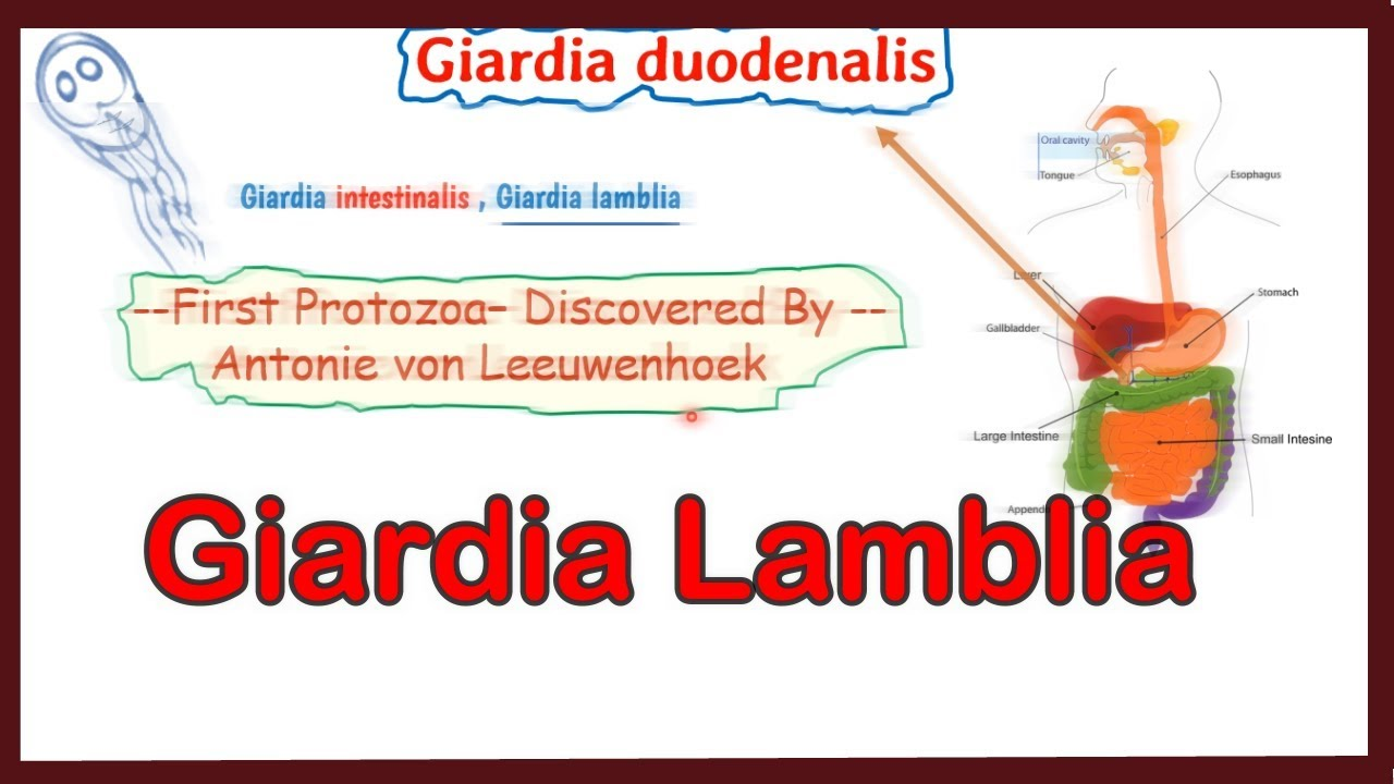 Giardiasis trichopolum