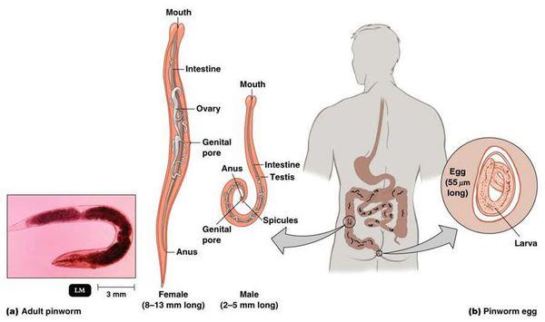 Pinworm parazita gyógyszeres kezelés A pinworm fertőzés okai