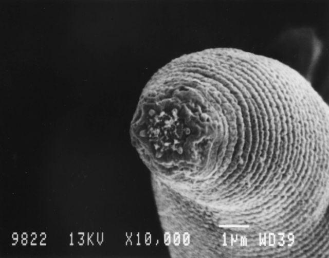 fonalfereg vizben hymenolepidosis kórokozója