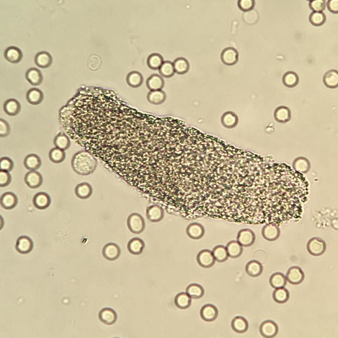 enterobiosis technika szirup giardiasishoz