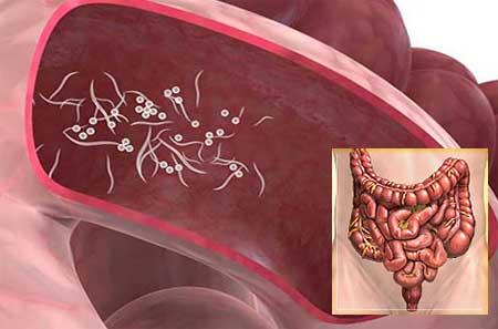 szarvasmarha szalagféreg életmód táblázat parazita gyógyszerek az emberi testben