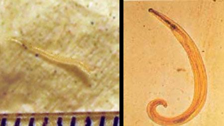 pinworm tojások a perianális redőkön