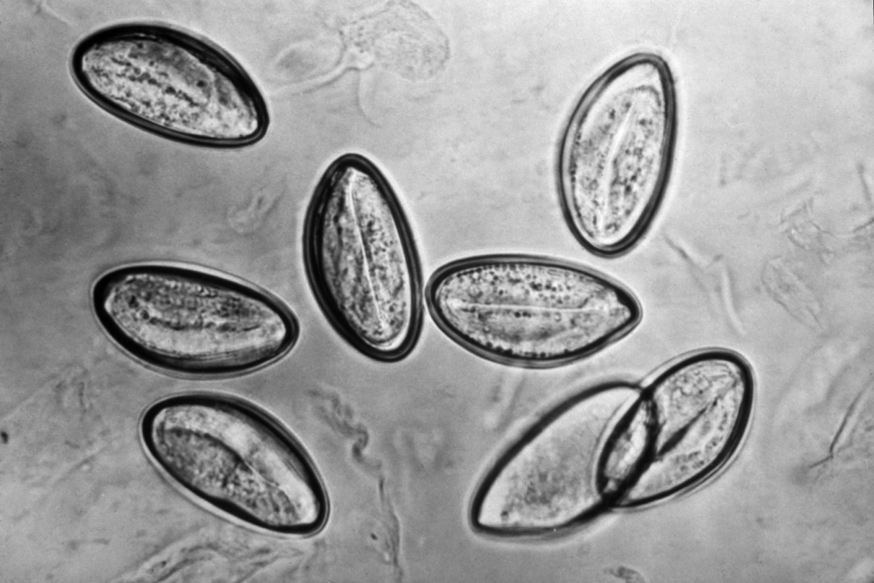 Cn enterobiosis, Enterobiasis gyermekek