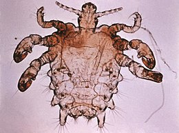 Paraziták a testünkben   TermészetGyógyász Magazin