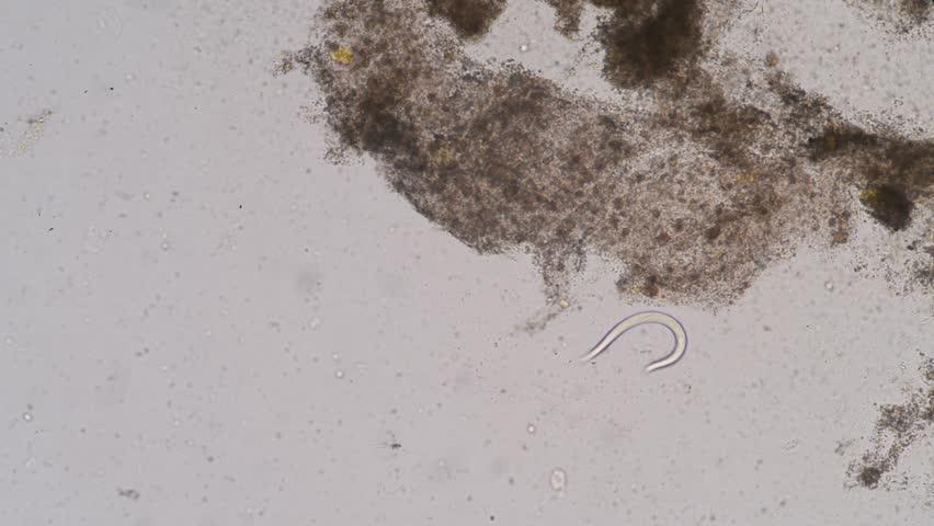 pinworms kutatás az emberek helminthiasisának megelőzése gyógyszerek