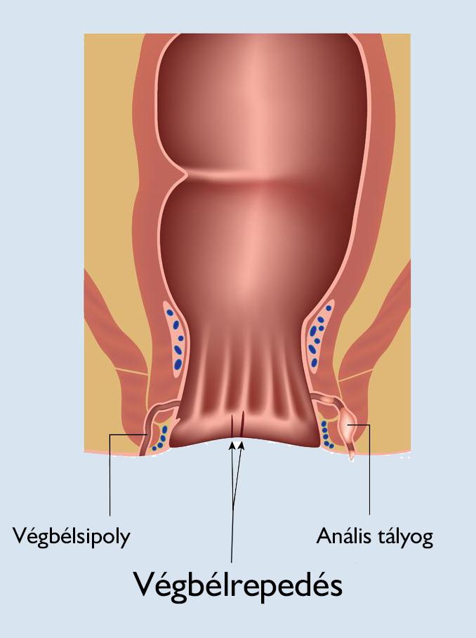 nyálkahártya a székletben, enterobiosisos