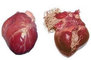 A szívférgesség kezelése