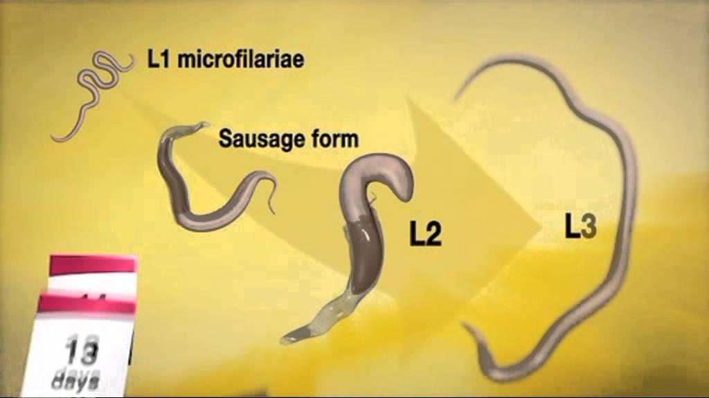 Pinworms 4 éves gyermeken