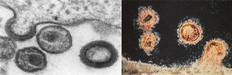 a giardiasis átviteli mechanizmusa paraziták gyógynövények