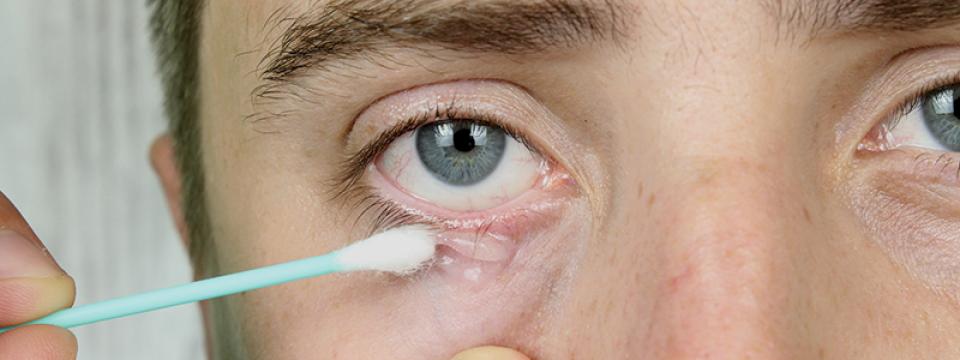 10 tünet, ami arról árulkodik: Parazita fészkel a testedben! - Kiskegyed