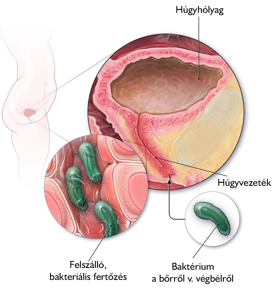 bakteriális húgyúti fertőzés