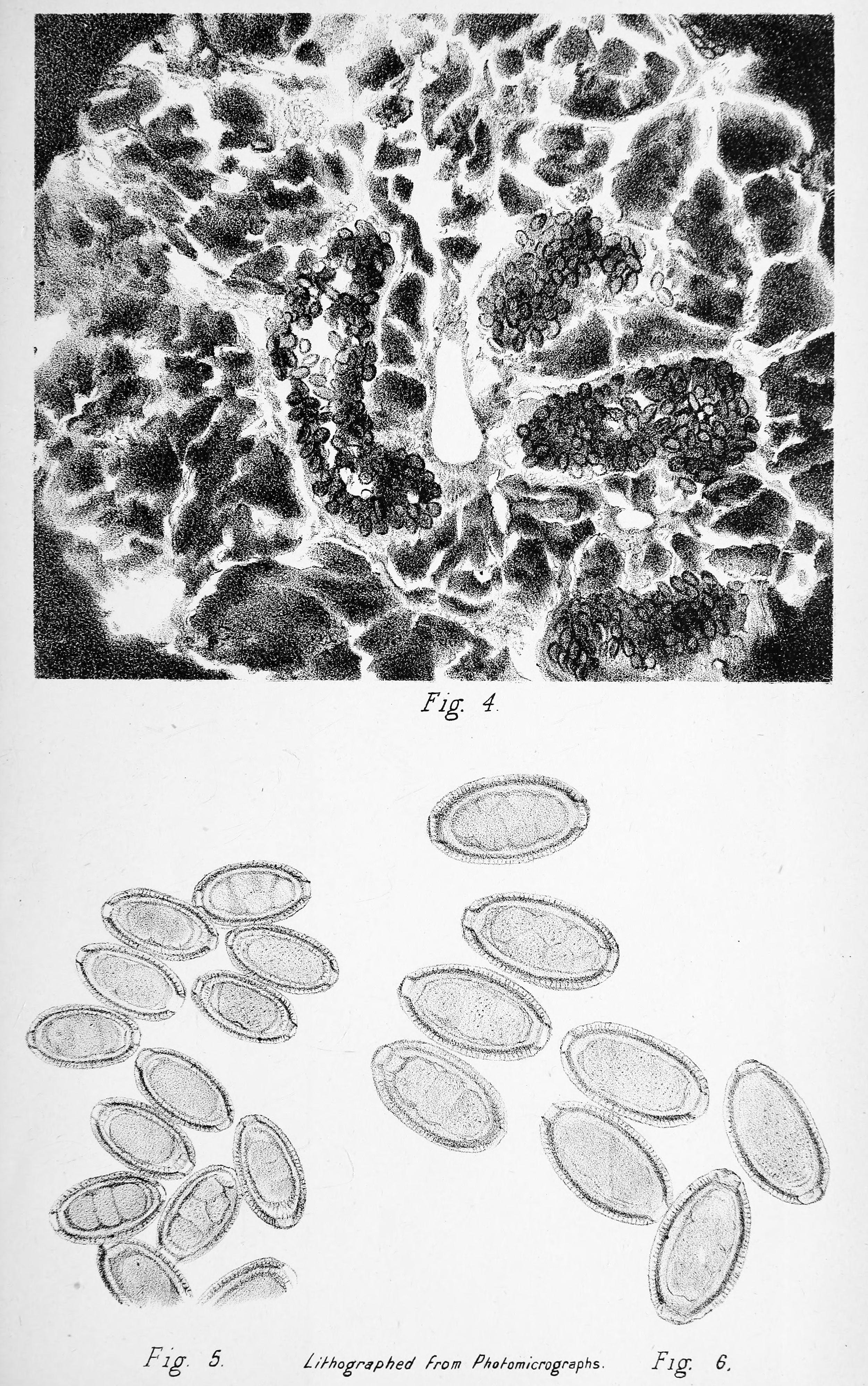 Trichocephalosis tojásméret - Profilaktikus tabletták a paraziták számára a testben