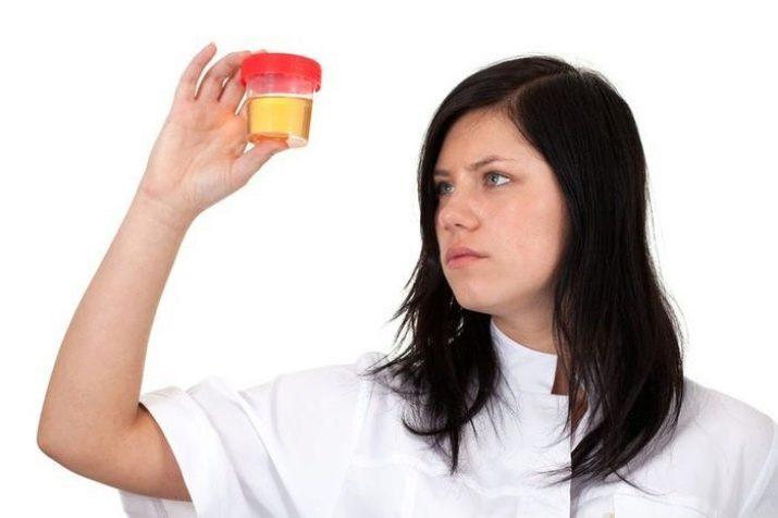 Az aceton szaga a szájból okozza, Mit jelent az aceton íz a szájban?