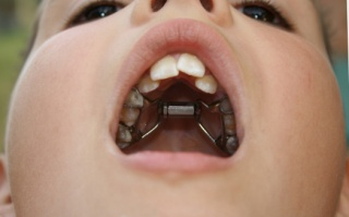 rossz lehelet plakk nyelv okoz