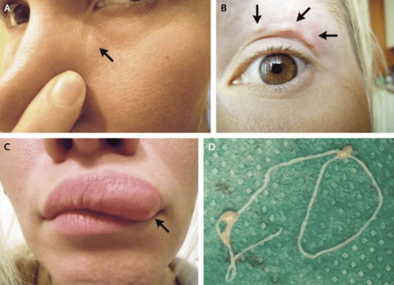 bőr alatt élősködő a közeg savasságának értéke a helminták kialakulásához