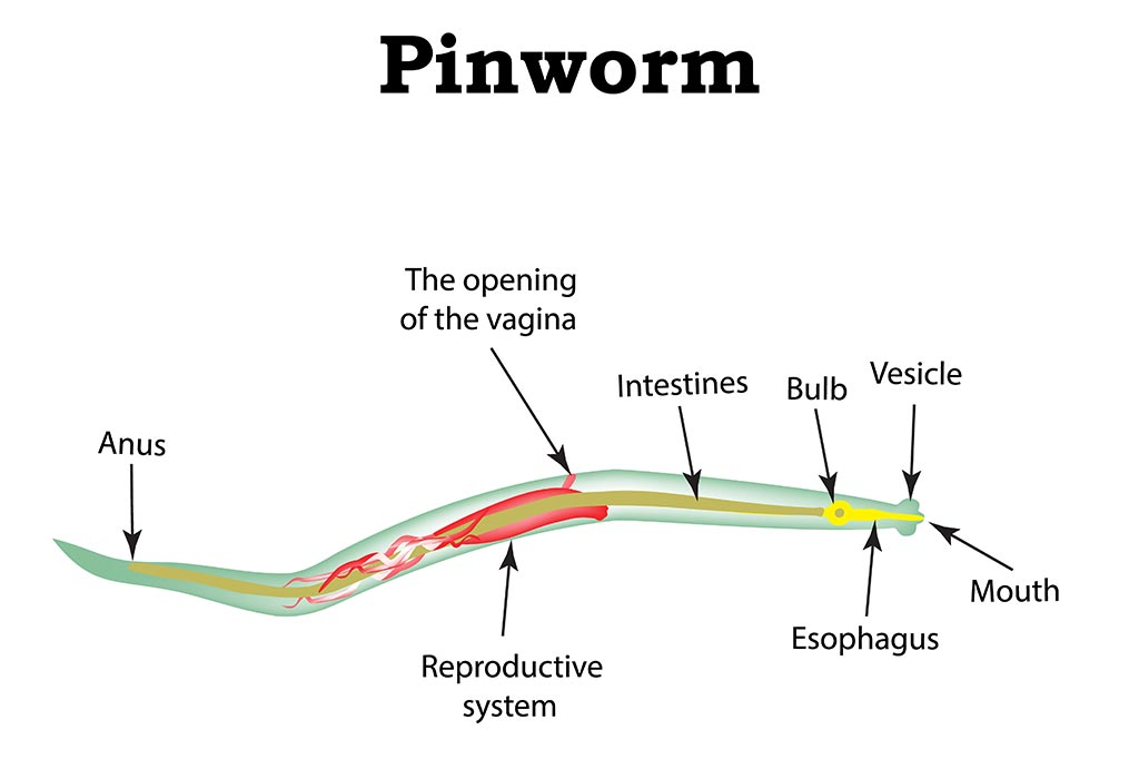 pinworm enterobiosis méregtelenítés metadonból