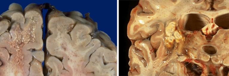 a toxoplazmózis inkubációs periódusa: hogyan kezeljük a férgeket újszülöttekben