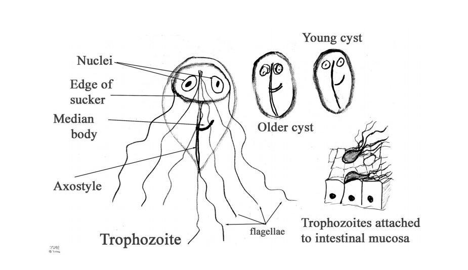 Echinococcosis- hooklet (hydatid sand) in hydatid fluid