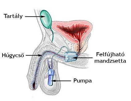 Sok nő szenved ettől - Itt a megoldás a női fertőzésekre - prokontra.hu
