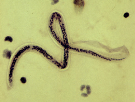 Platyhelminthes coelom.