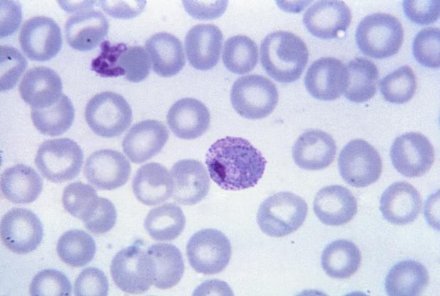 malária plazmodium trophozoitja hogyan lehet megszabadulni a férgektől a szemében