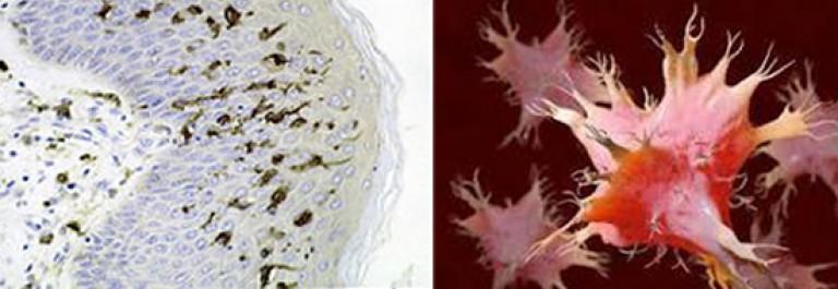 mikroorganizmusok és helminták a betegség tünetei tünetei
