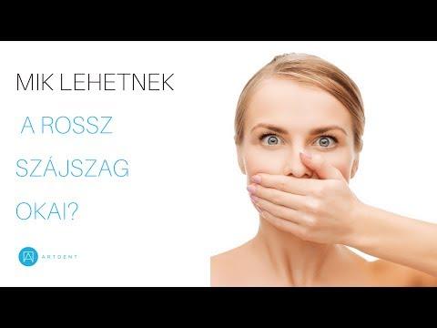 miért szűnik meg a száj szaga