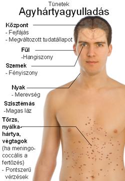 Hiperszplénia (fokozott lépműködés) tünetei és kezelése