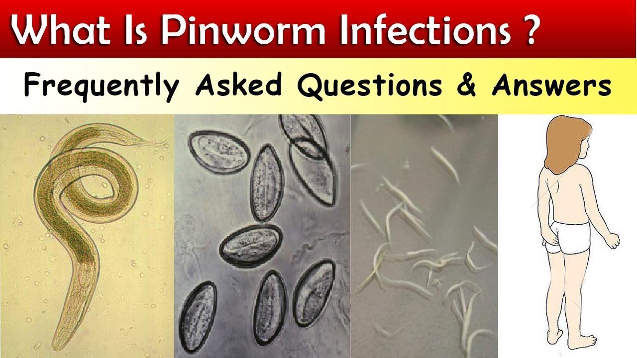 írja le a pinworm fertőzés módját