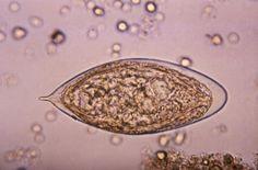 schistosoma haematobium paraziták cocci bacillus férfiak kenetében